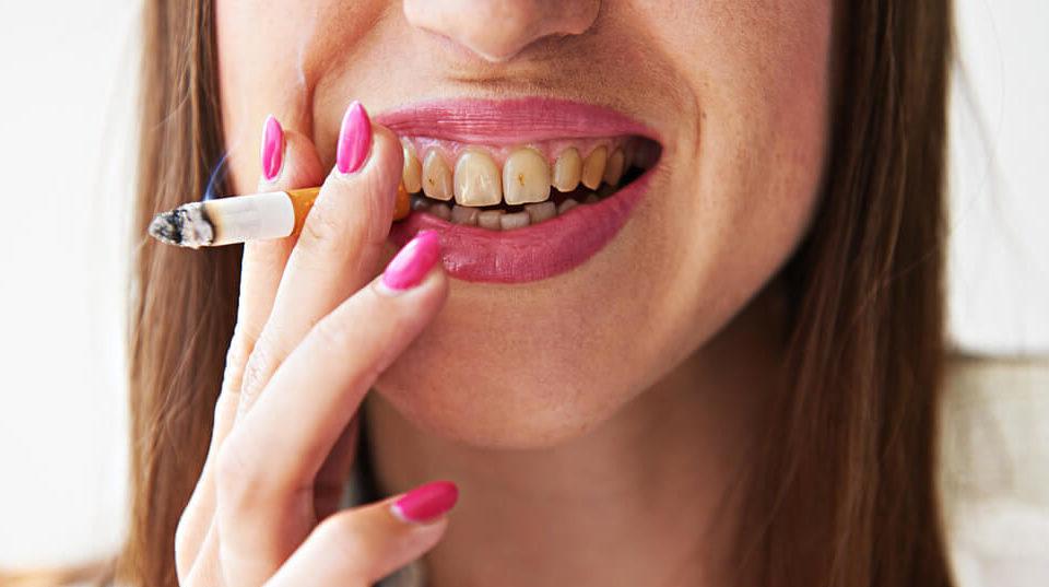Влияние курения на зубы