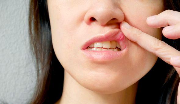 Что такое стоматит и как его предотвратить